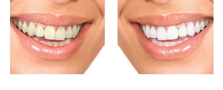 FUN but REAL: Weiße Zähne sind schöner als hellgraue – dasselbe trifft auf Anschlussklemmen zu